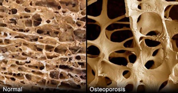 cause-of-osteoporosis