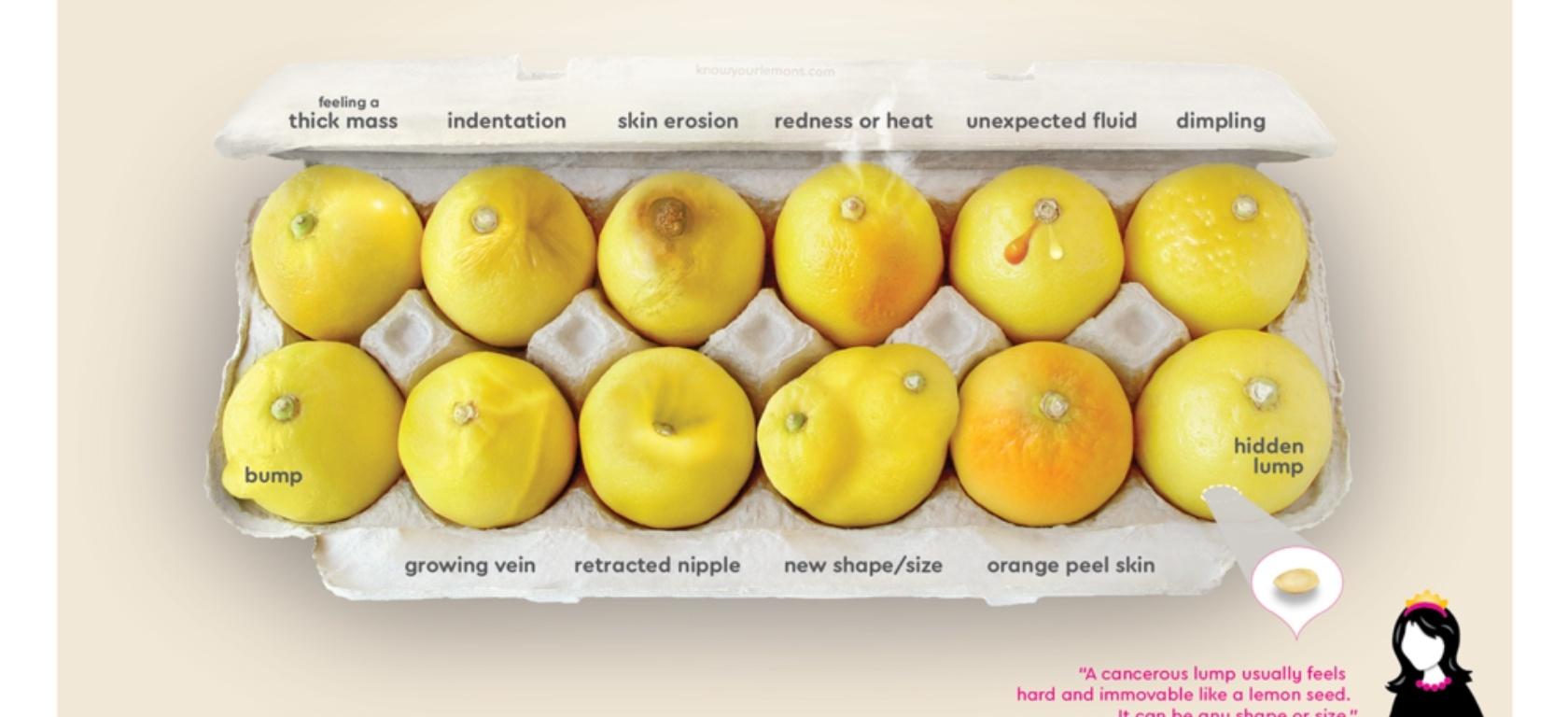 καρκίνος μαστού, Ca μαστού, γυναίκα και καρκίνος, γυναίκα και μαστός,