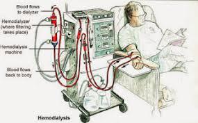 proses hemodialisa