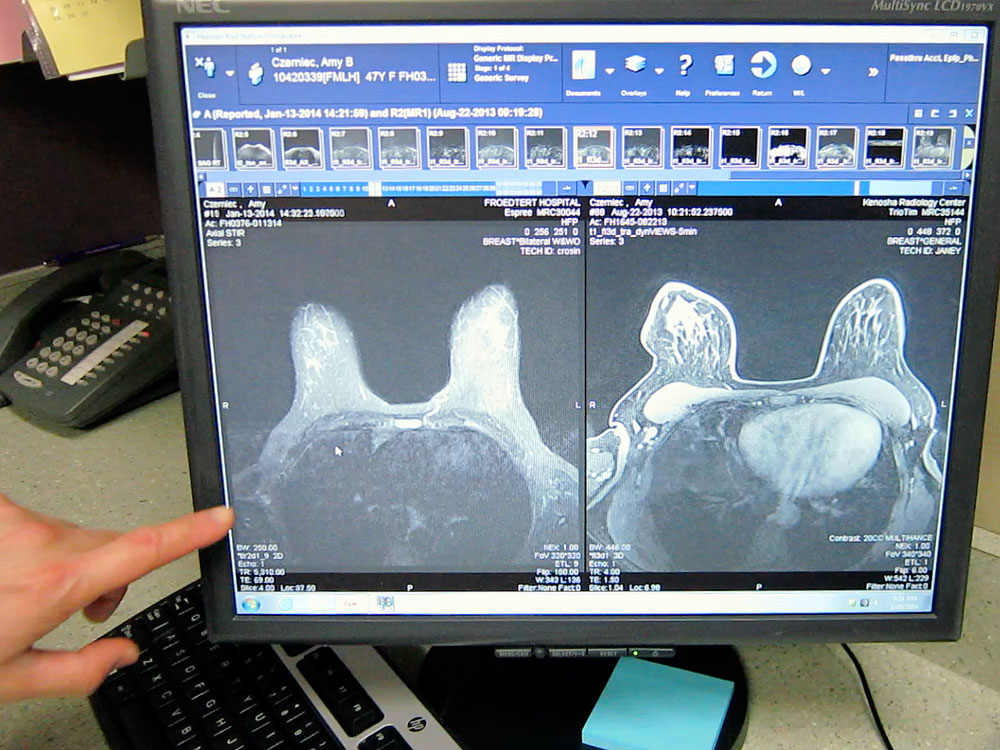 Breast cancer MRI results, before and after chemotherapy