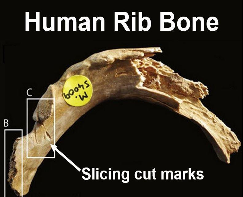 Human rib bone