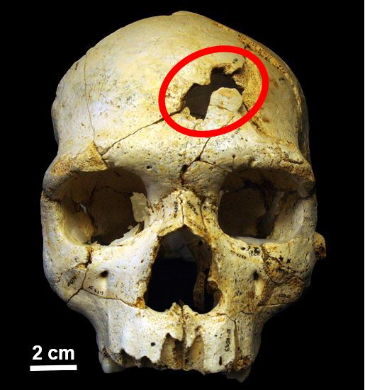 Evidence of ancient murder on skull