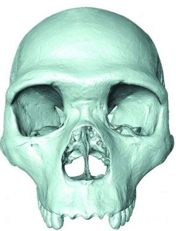 Common ancestor skull