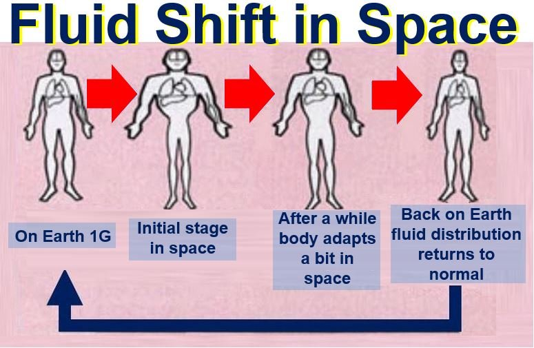 Fluid shift in microgravity of space