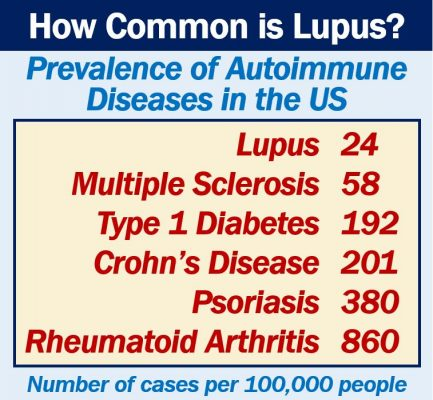 How common is lupus