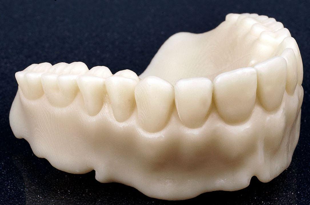 Dental 3D printing 4