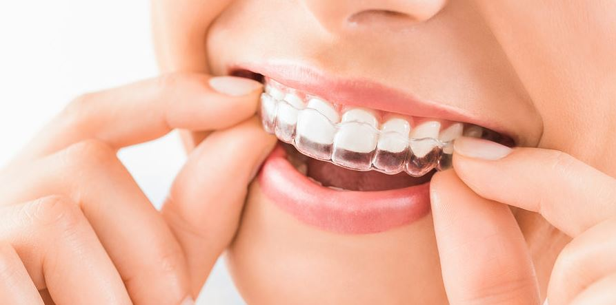 Invisible aligners for straightening teeth