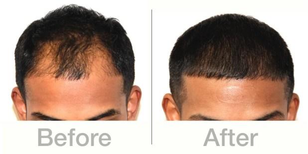 HairInstitute_BeforeAfter.jpg