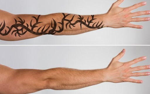 How to remove permanent tattoo without laser