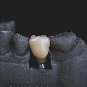 3 Reasons to Get Dental Implants and Address Your Oral Needs