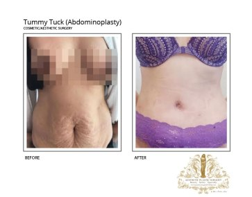 Tummy-Tuck-Gallery---Before-and-After-v12-2-18