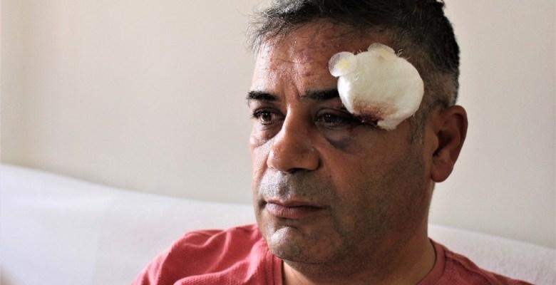 İYİ Parti grup başkan vekili trafikte 4 kişinin saldırısına uğradı