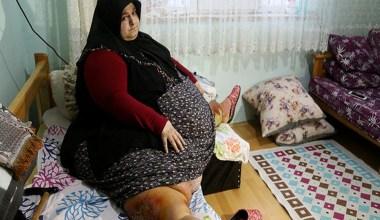 Sakarya'da yaşayan ve 250 kilo olan Sevim Bal obezite ameliyatı ile 95 kiloya düştü