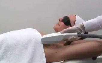 EPILATION RADICALE CHEZ RELOOKING BEAUTE MINCEUR TEMARA