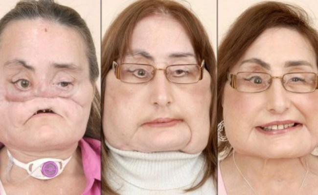 Dr Maria Siemionow Performs World S First Near Total Face