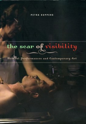 Scar of Visibility