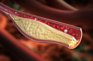 3d image of cholesterol buildup in an artery