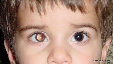 caso 2 tumor en ojo derecho