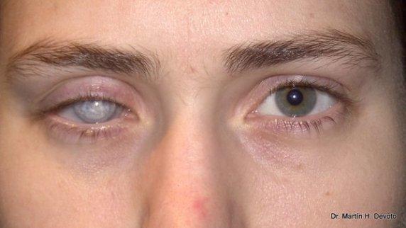 caso 4 ojo der doloroso pre y post evisceración