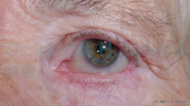 cancer de piel case 2_7