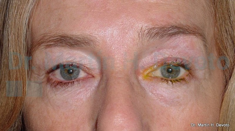 cancer de piel case 4_2