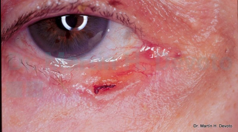 cancer de piel case 5_2