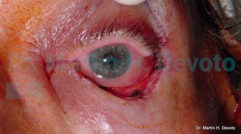 cancer de piel case 7_2