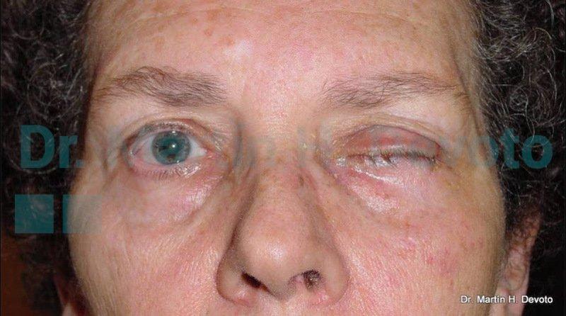 cancer de piel case 7_3