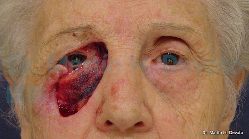 cancer de piel case 8_1