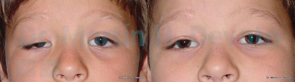 ptosis congenita 1