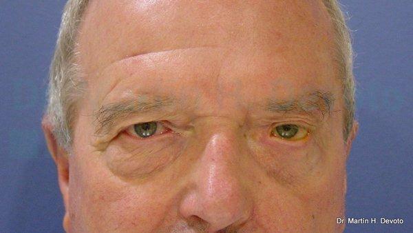 paralisis facial 11