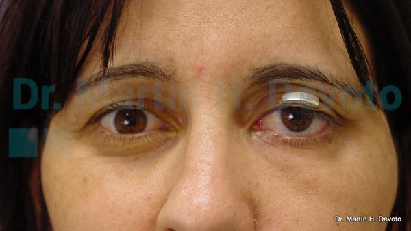 paralisis facial 15