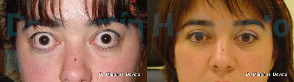 tiroides y ojos 8