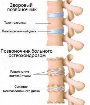 osteoporoz-2-1