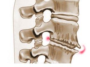 osteohondroz-pozvonochnika