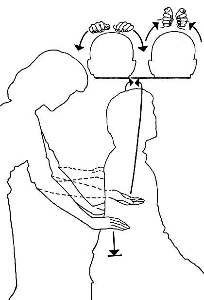 Gimnastica medicala pentru varice