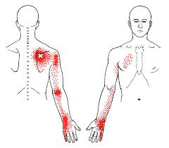 Inferior, Posterior Shoulder Pain, Pain Runs Down the Arm