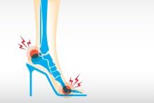 Heel Pain Treatments