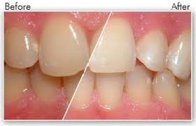 Bàn chải đánh răng Lebond