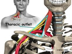 Massage therapy is highly effective in treating thoracic outlet syndrome.