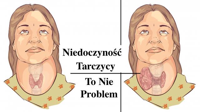 Niedoczynność Tarczycy – Jak pozbyć się brzucha do Świąt – 20 kg