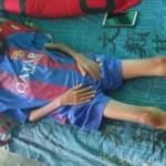 Kisah Pilu Malik; Anak Yatim Piatu di Bangkalan Terbaring Lemas Akibat Gizi Buruk