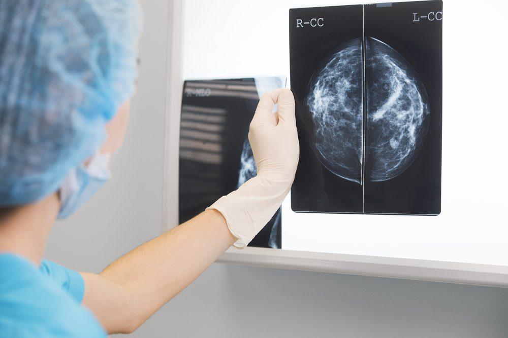 Diagnóstico de cáncer de mama