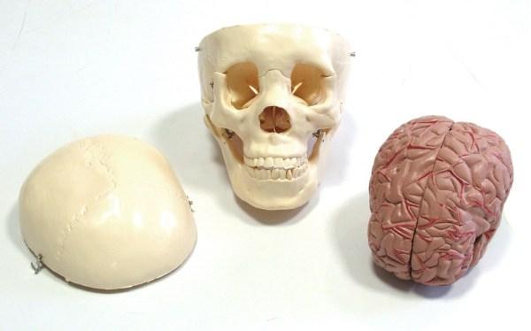 Craniu cu encefal 3