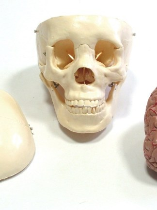 Craniu cu encefal