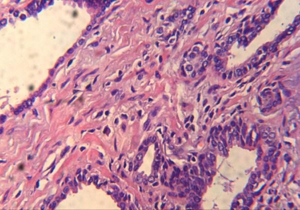 Microscop digital monocular 8