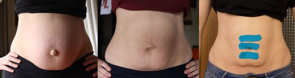 ejercicios para corregir diastasis recto abdominal