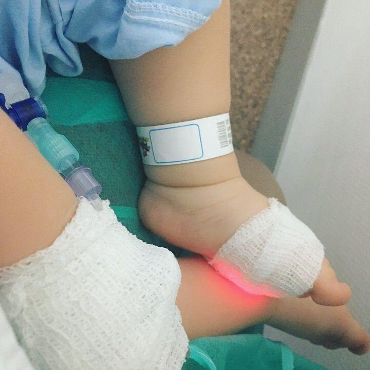 operacion-conducto-nasolagrimal