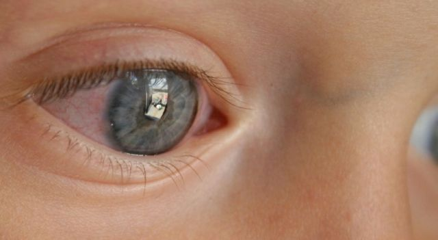ojos rojos bebe