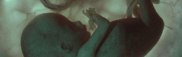 aborto-recurrente7